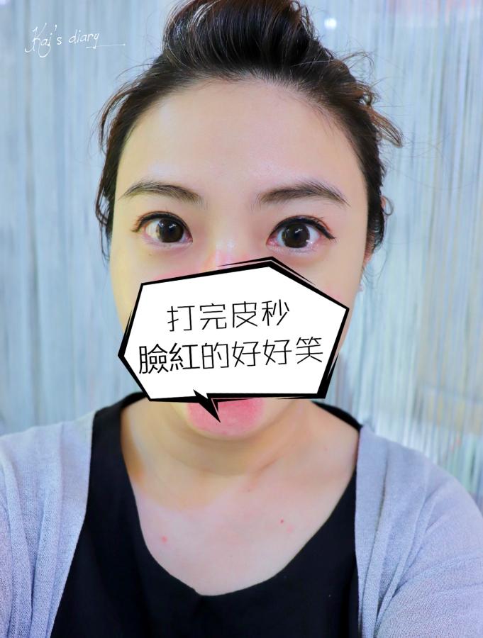 延伸閱讀:☆【醫美】麗思診所-拿鐵肌的皮秒雷射初體驗
