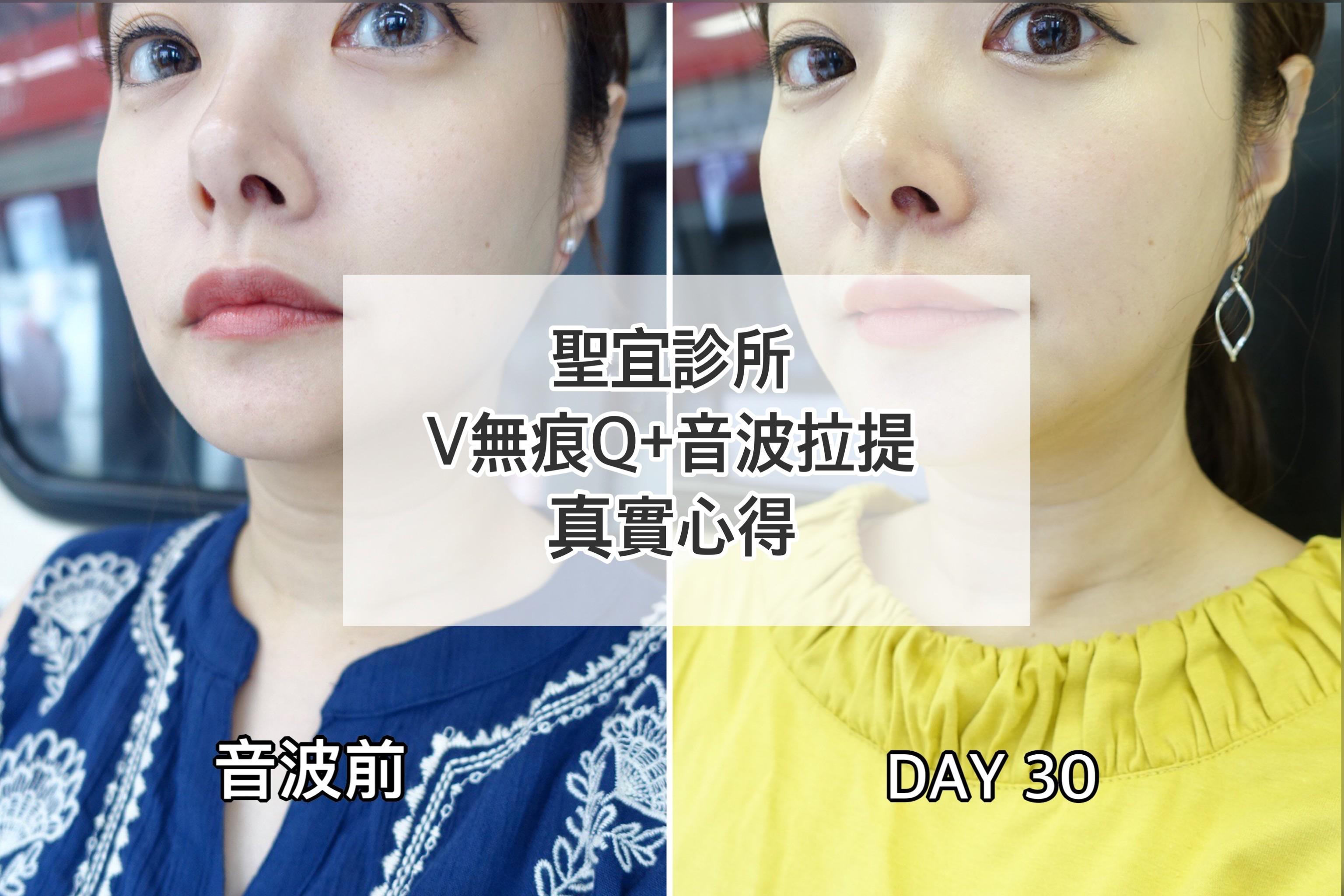 延伸閱讀:☆【醫美】聖宜診所-V無痕Q+音波拉提全記錄