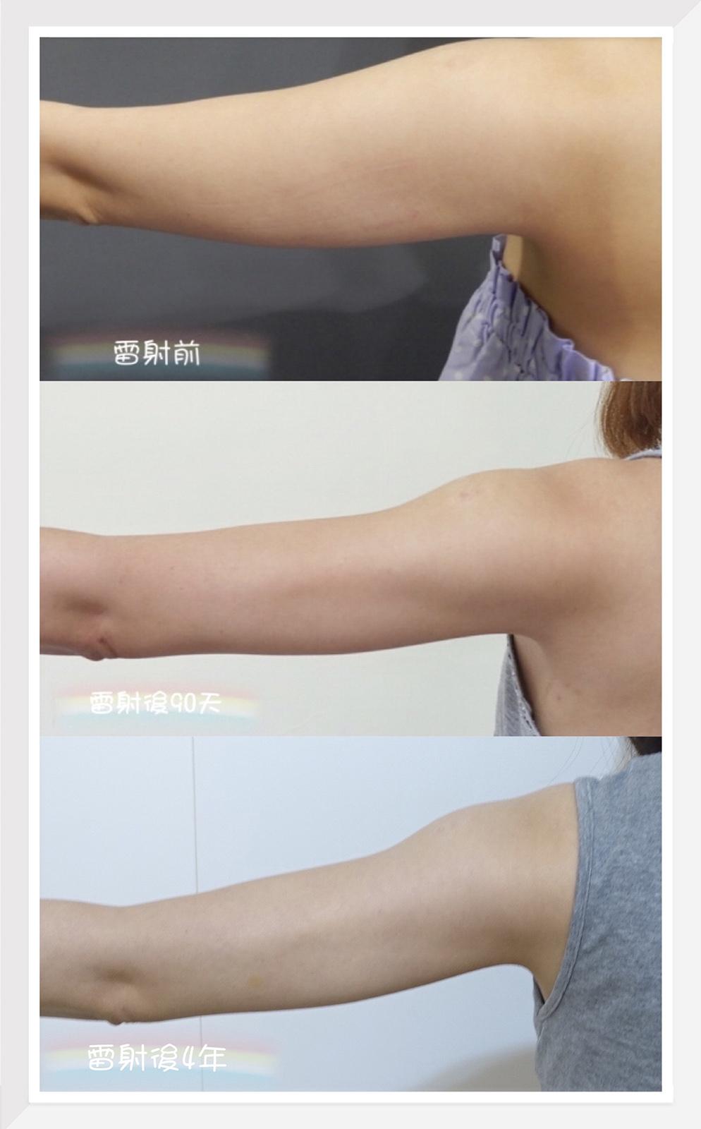 【醫美】2020更新!不再糾結了~跟我的掰掰袖說掰掰!手臂+副乳雷射減脂日記