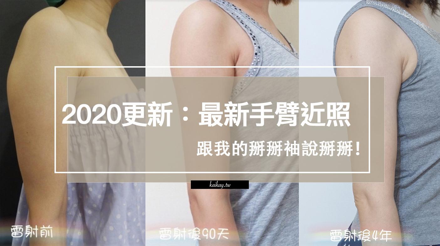 【醫美】2020更新!不再糾結了~跟我的掰掰袖說掰掰!手臂+副乳雷射減脂日記 @凱的日本食尚日記